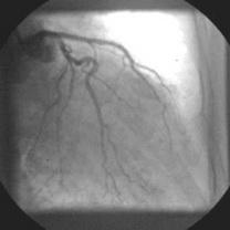 Implantare primară de stent Bx-Velocity