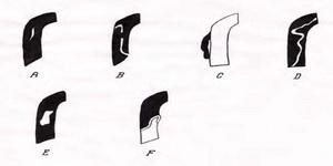 Tipuri de disecţie: schema reprezintă coronara dreaptă la unirea segmentului 2 cu 3, zona predispusă la disecţie(în negru apare substanţa de contrast)