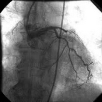 Infarct miocardic acut anterior la 1 oră de la debut, la 5 zile de la stentare pentru infarct acut în acelaşi teritoriu; ocluzie de IVA. Pe interventriculară, proximal, apare o placă ulcerată, fără a realiza stenoză semnificativă