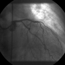 Implantare de stent distal de primul stent cu suprapunerea lor parţială şi expandarea la 14 atm. a ambelor stenturi